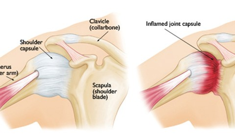 Adhesive Capsulitis or 'Frozen Shoulder'