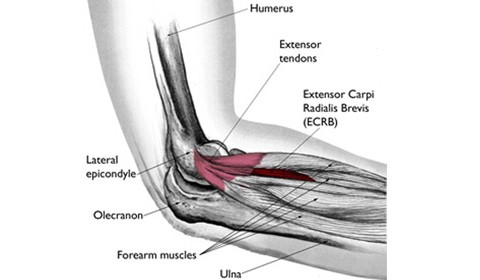 Lateral Epicondylalgia (Tennis Elbow)