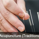 acupuncture-traditional