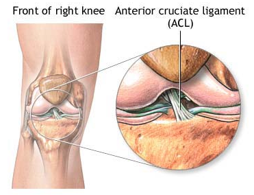 ACL Rupture