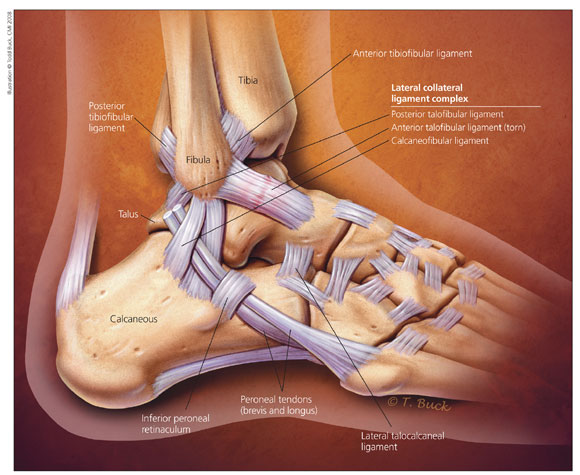 LATERAL ANKLE SPRAIN | Axon Physio & Acupuncture