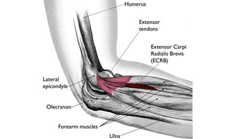 Lateral Epicondylalgia (Tennis Elbow)